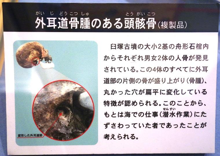 臼塚古墳人骨の外耳道骨腫解説