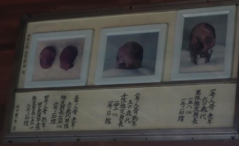 石棺出土の頭蓋骨写真
